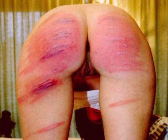 Severe Bare Bottom Caning