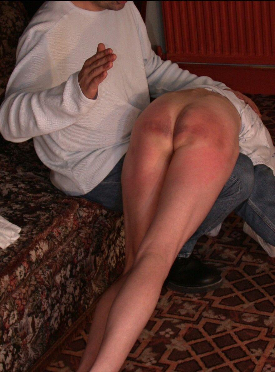 Severe otk spanking